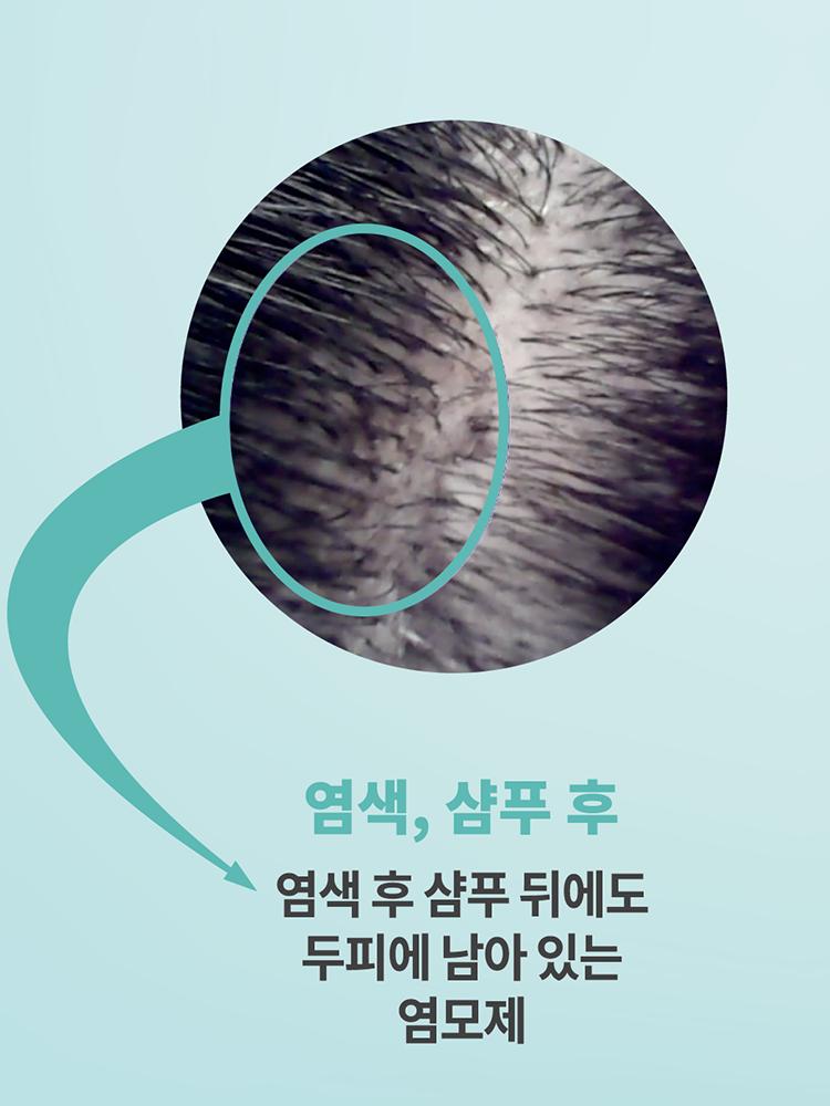두피캄 폼쿨/앰풀 스칼프 클렌저 세트 (DFC+DA02) 일반 두피용