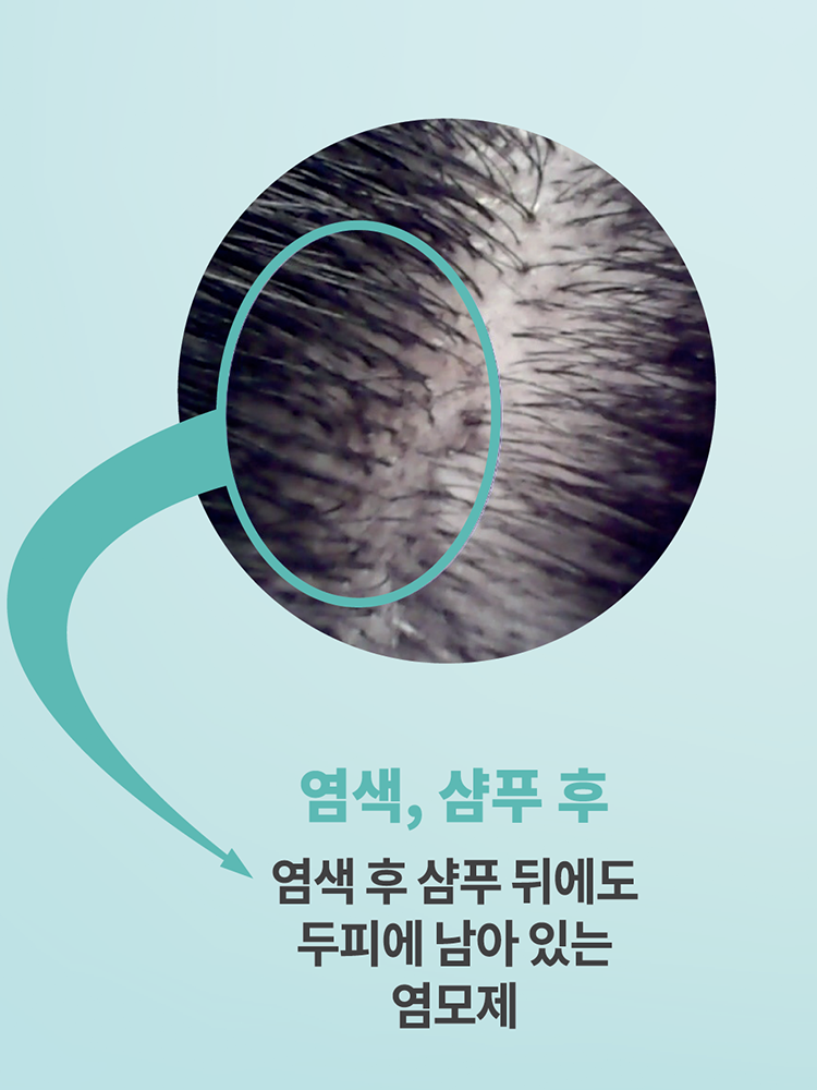 두피캄 폼쿨/폼 스칼프 클렌저 세트(DFC150+DF150) 150mL 일반/민감성 두피용